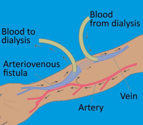 Dialysis Access Care