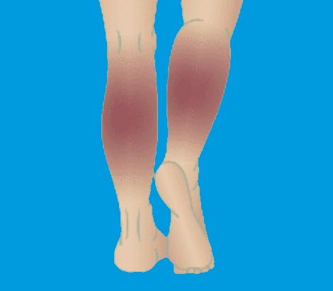 Leg discoloration